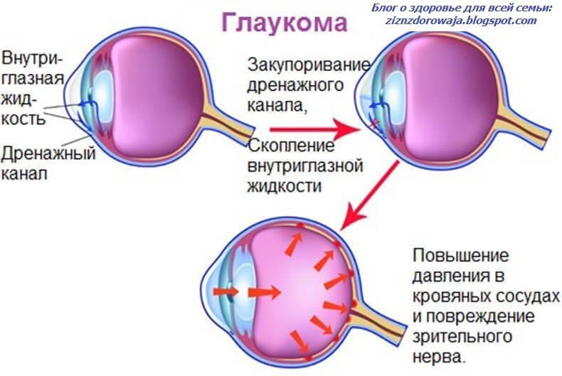 Противопоказания при глаукоме — что можно и нельзя (спорт, алкоголь, компьютер, препараты)