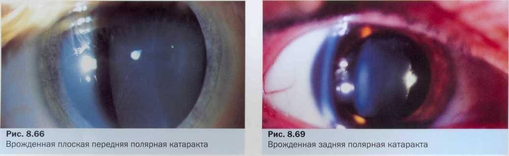 Вторичная катаракта после замены хрусталика: лечение лазером, причины повторного возникновения, противопоказания, диагностика, симптомы, прогноз и профилактика