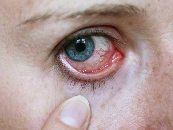 Почему болит глазное яблоко одного глаза - возможные причины и лечение!