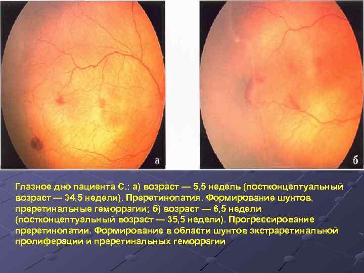 Ретинопатия – что это, как диагностируется и лечится недуг? — глаза эксперт