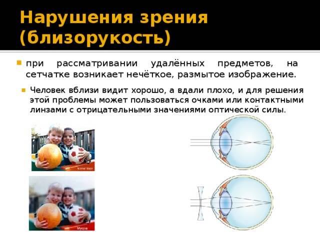 Как улучшить зрение, если у вас дальнозоркость?