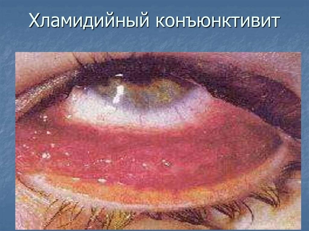 Острый конъюктивит: лечение, симптомы