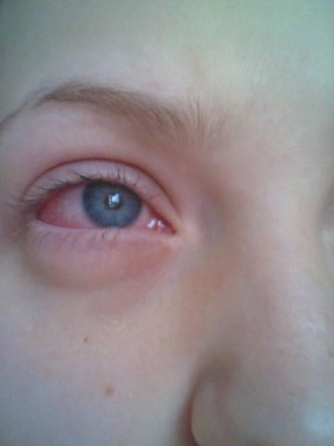 Болит глаз при моргании: причины и последствиям