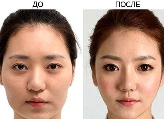 Кантопластика: что это такое, фото до и после, эпикантопластика, латеральная, медиальная и другие виды пластики вокруг глаз, где можно сделать, цены на коррекцию
