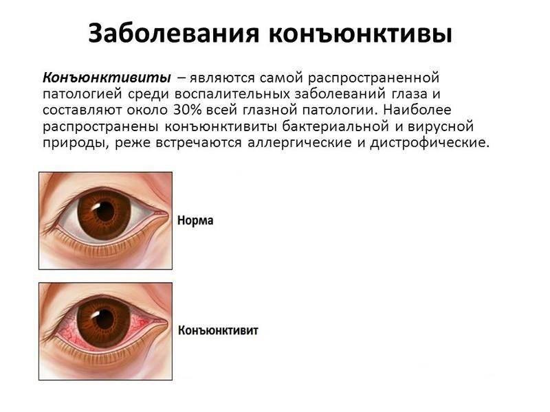 Конъюнктивит
