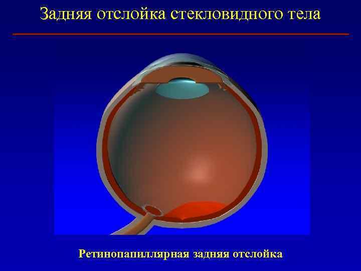 Симптомы и лечение при отслойке стекловидного тела