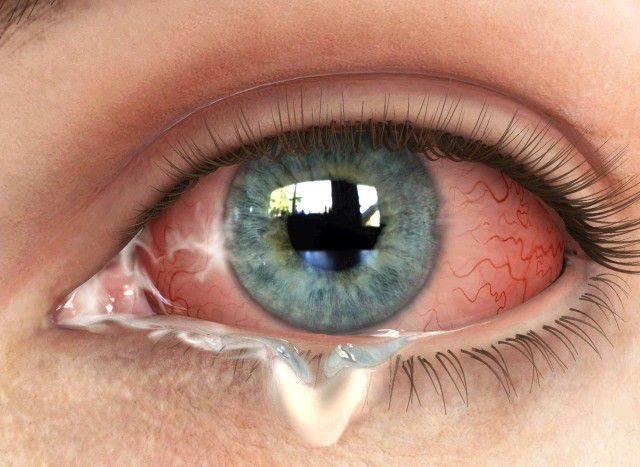 Почему после бани глаза гноятся, с чем может быть связана патология и как ее лечить
