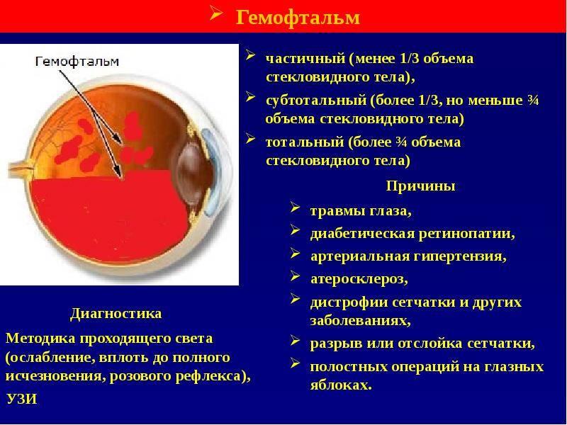 Гемофтальм глаза: причины, фото и лечение патологии