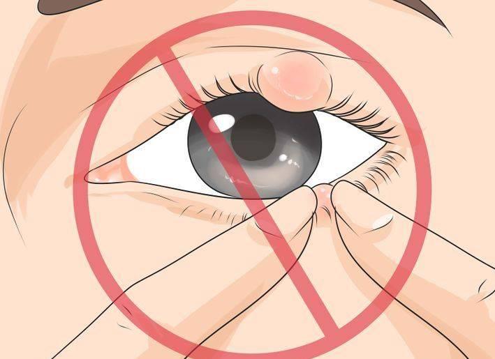 Что делать при появлении первых симптомов ячменя на глазу