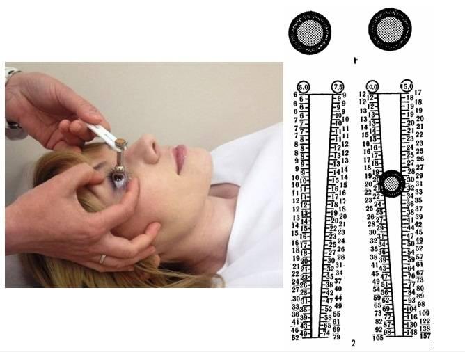 Измерение внутриглазного давления при помощи тонометра маклакова | глазной.ру