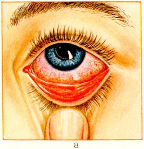 Гиперемия конъюнктивы причины симптомы и лечение