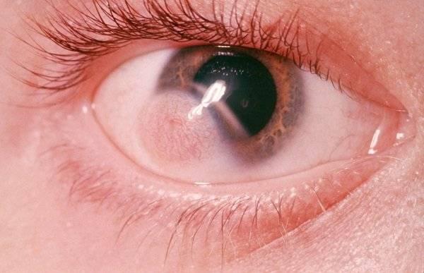 """Киста на веке глаза: причины, симптомы и методы лечения - """"здоровое око"""""""