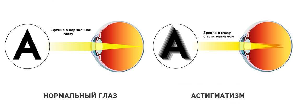 Как видит человек с астигматизмом, зрение при астигматизме