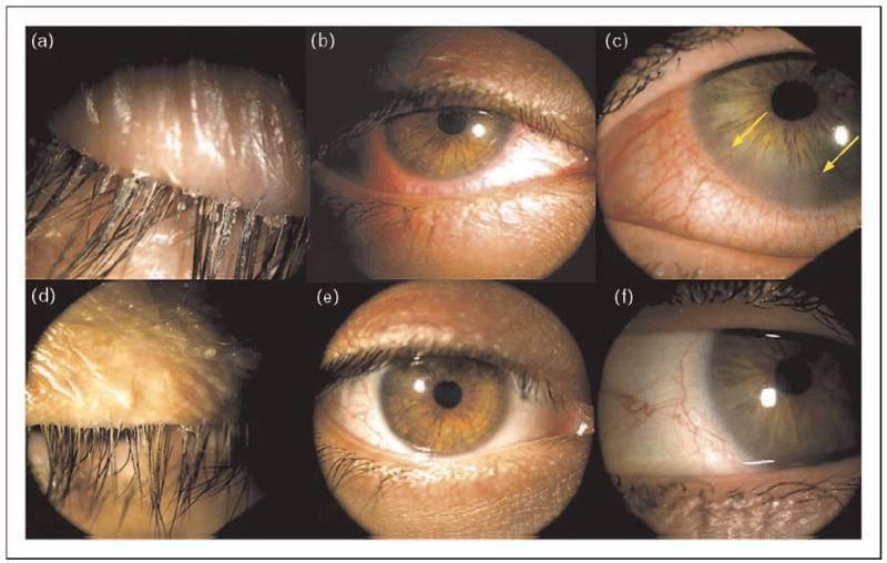 Клещ демодекс: веки, ресницы, кожа вокруг глаз, препараты для лечения