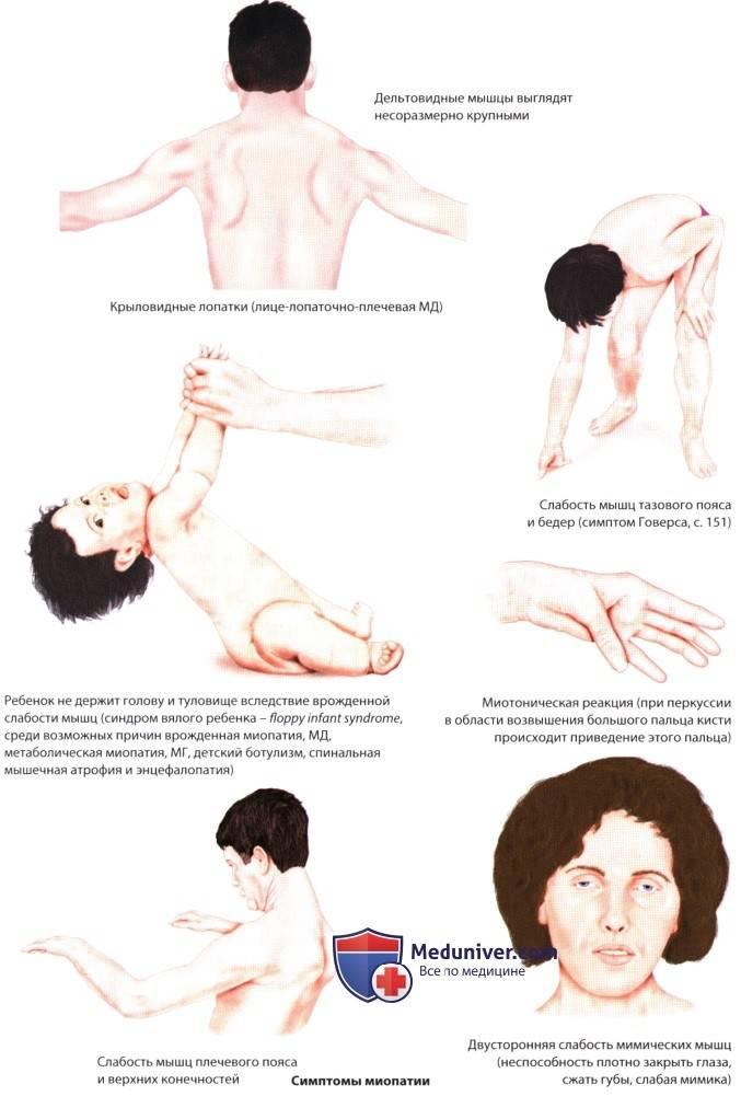 Миопатия дюшена. что это такое, симптомы у детей, взрослых, проноз, лечение, тип наследования