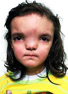 Причины гипертелоризма и методы лечения