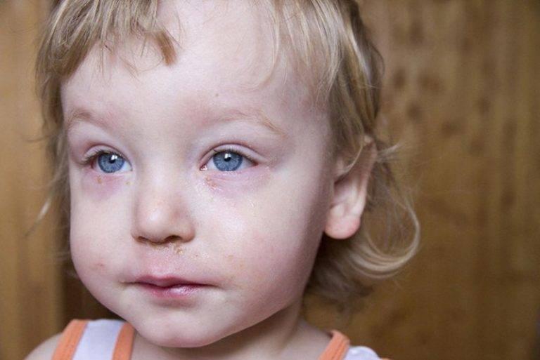 Болят глаза при простуде, орви или гриппе без температуры: причины светобоязни и способы лечения в домашних условиях средствами народной медицины и глазными каплями