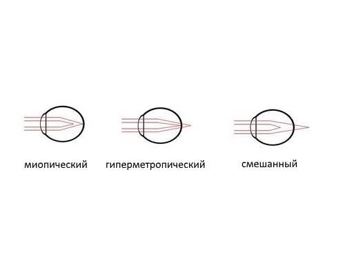 Миопический астигматизм: что это такое