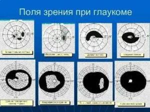 Почему может происходить выпадение полей зрения
