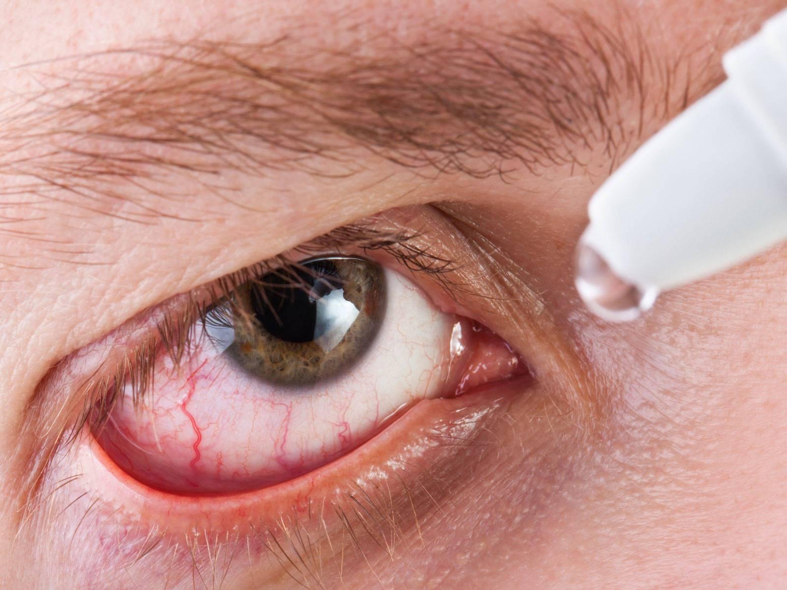 Красный глаз закисает и болит