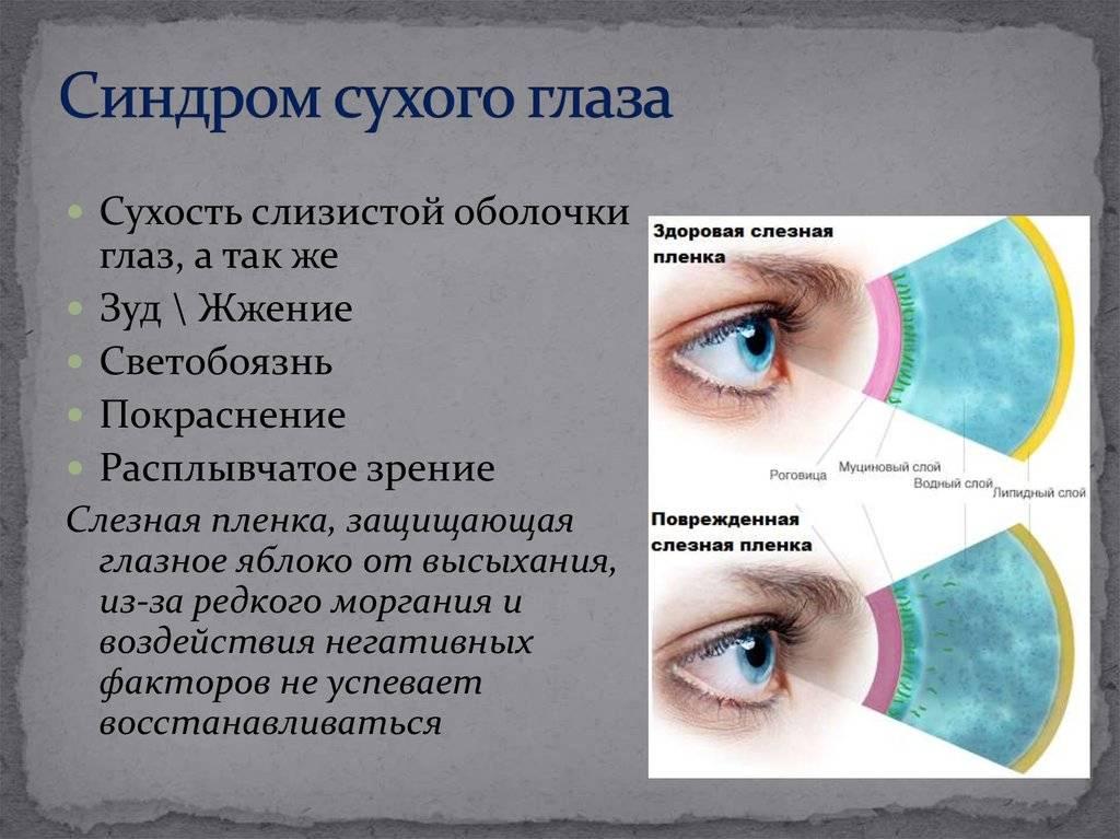 Как лечить синдром сухого глаза: капли и препараты от сухости