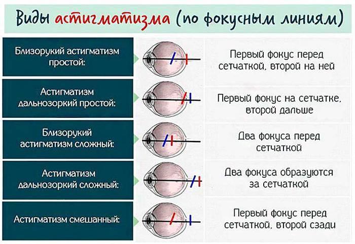 Аметропия: виды, классификация, лечение