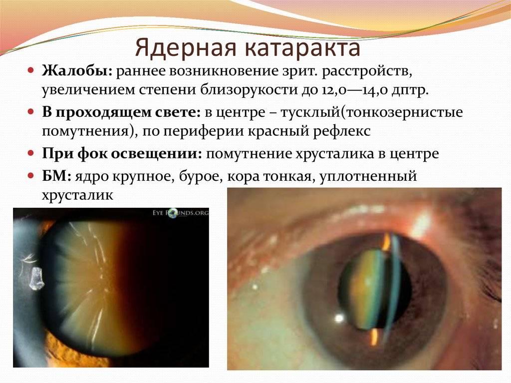 Старческая (сенильная) катаракта: причины и лечение