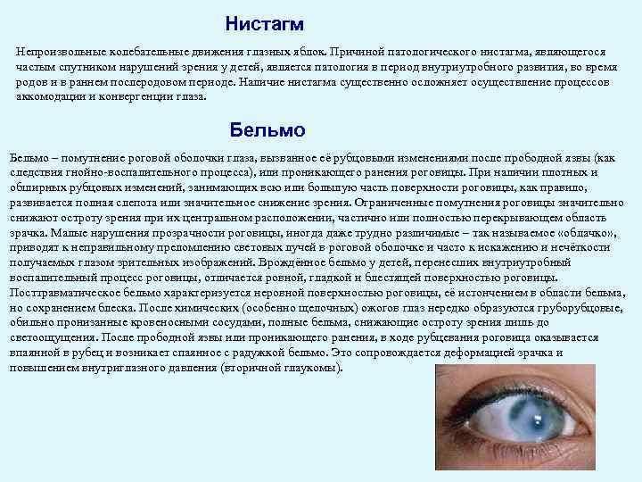Нистагм: особенности и виды заболевания — глаза эксперт