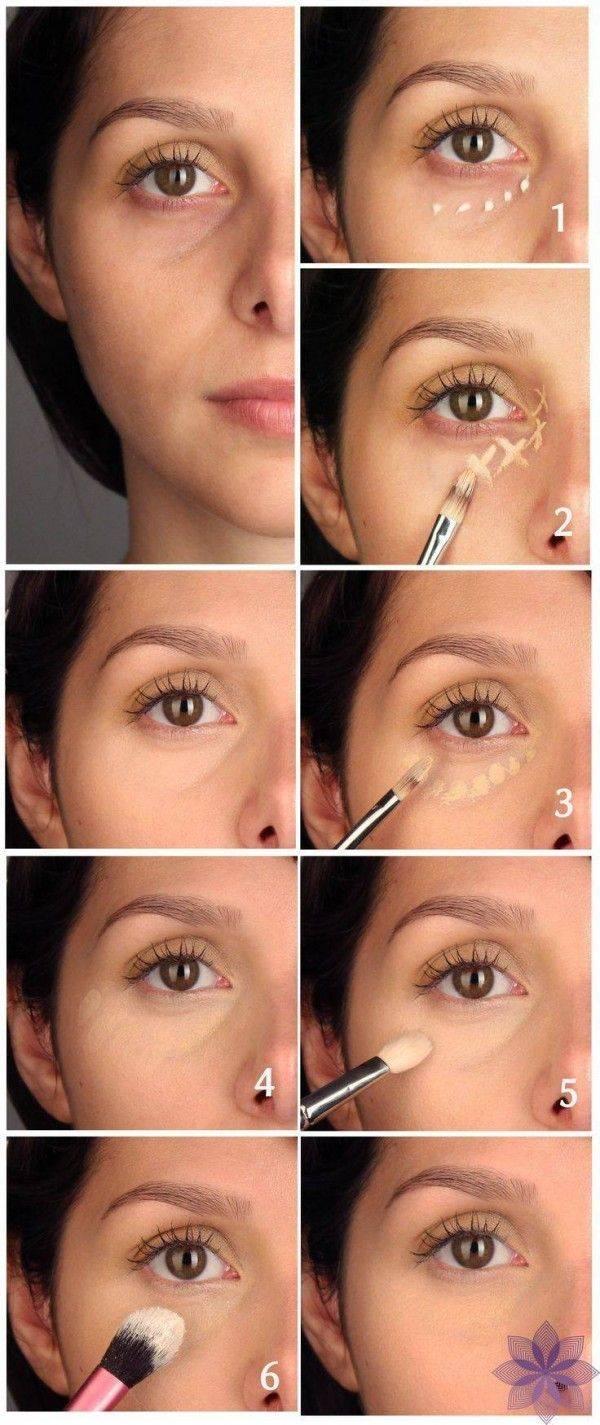 Синяки под глазами: виды, причины, лечение, как быстро убрать синяк под глазом