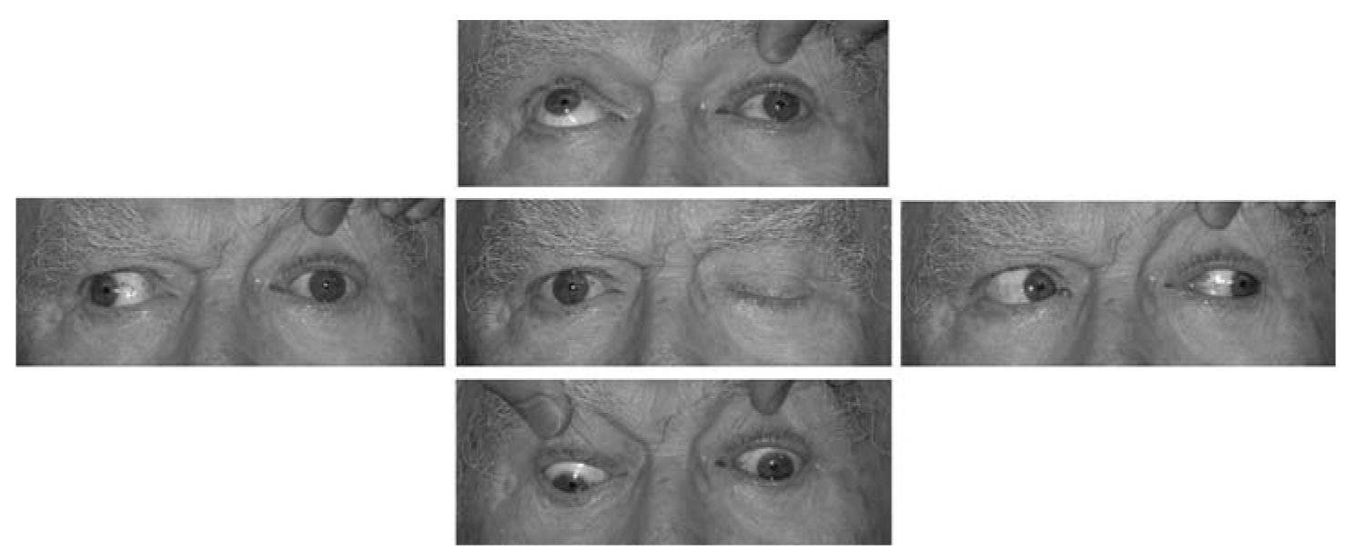 Почему двоится в глазах: причины и симптомы патологии