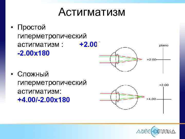 Сложный и простой миопический астигматизм