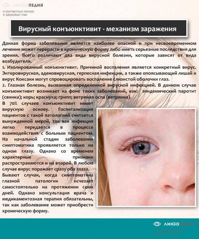 Конъюнктивит у новорожденных: виды и симптомы болезни