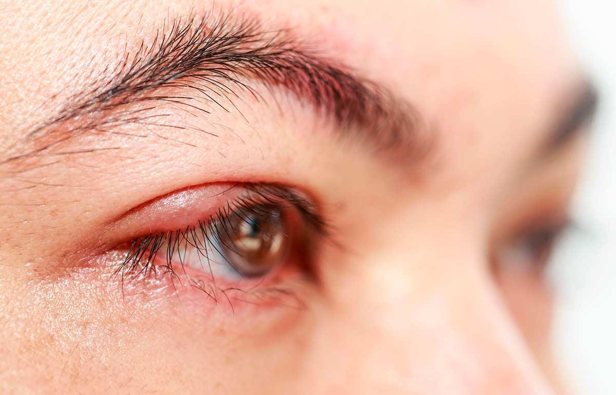 Заговор от ячменя на глазу - как заговорить ячмень на глазу самой себе в домашних условиях | медицинский портал spacehealth
