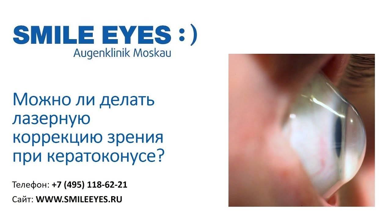 В чем особенность метода лазерной коррекции зрения relex smile?