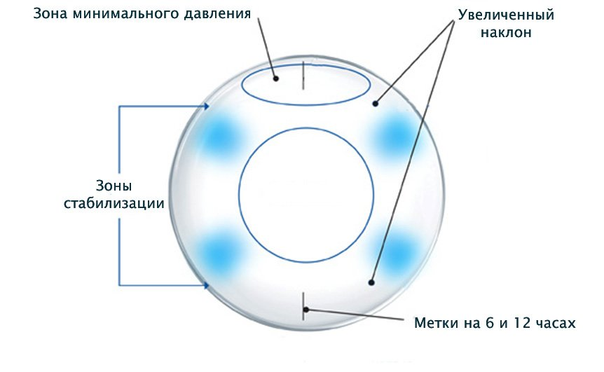 Можно ли при астигматизме носить астигматические контактные линзы