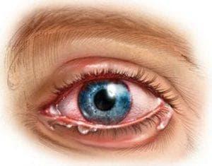Иридоциклит: симптомы, лечение