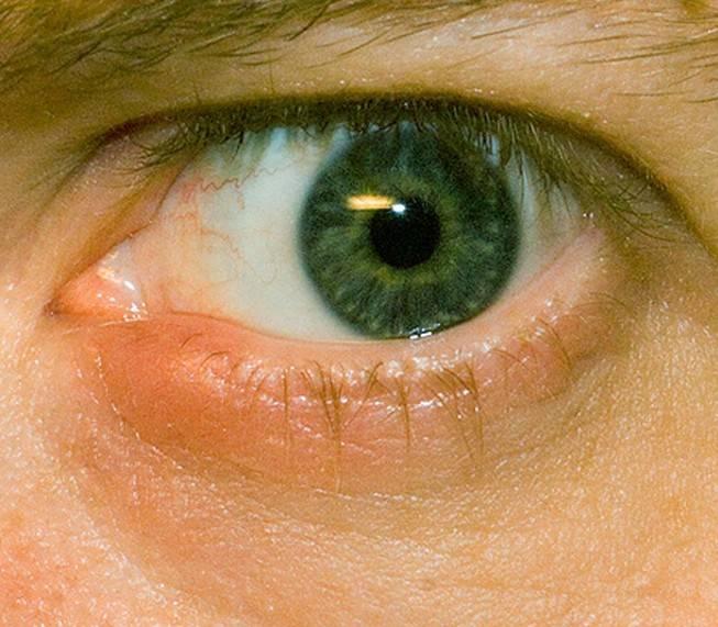 Герпес на глазу: фото, симптомы и лечение