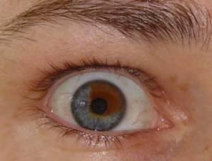 Что такое невус хориоидеи глаза: виды и лечение