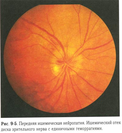 Ишемическая нейропатия зрительного нерва - передняя и задняя, симптомы, причины и лечение
