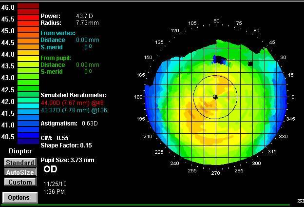 Компьютерная кератотопография глаза: что это такое, расшифровка результатов
