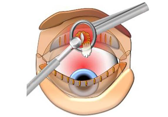 Операция по удалению халязиона: как делается, видео, удаление лазером