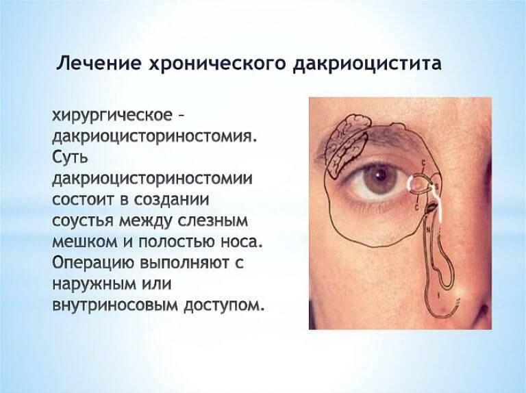 Дакриоцистит - симптомы, лечение хронического дакриоцистита у взрослых