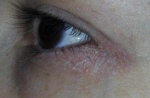 Вокруг глаз шелушится кожа и краснеет и чешется, причины и лечение