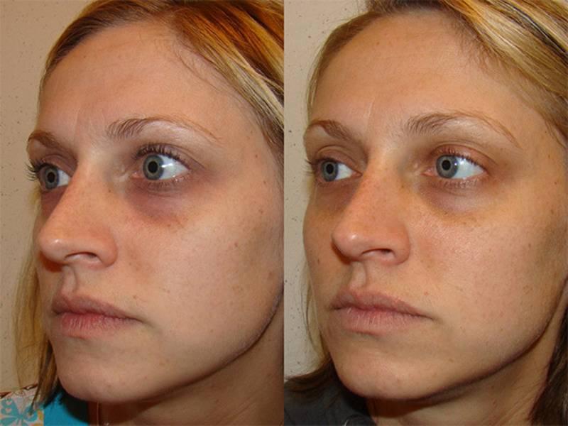 """""""дермахил"""" (от мешков под глазами): отзывы косметологов, фото, противопоказания. как колоть """"дермахил"""" от мешков под глазами?"""