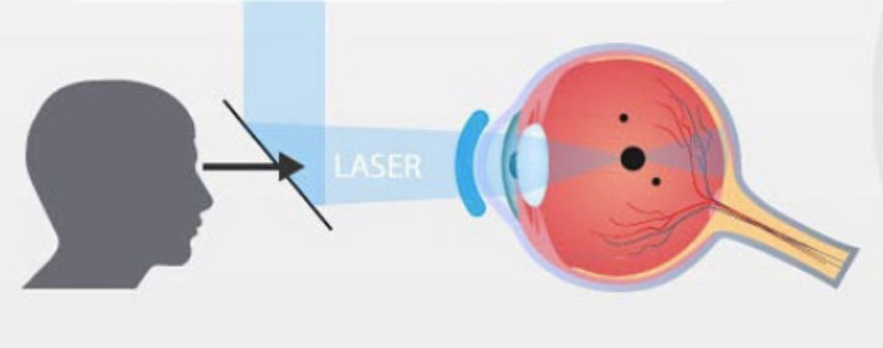Деструкция стекловидного тела | мнтк «микрохирургия глаза» им. акад. с.н. федорова