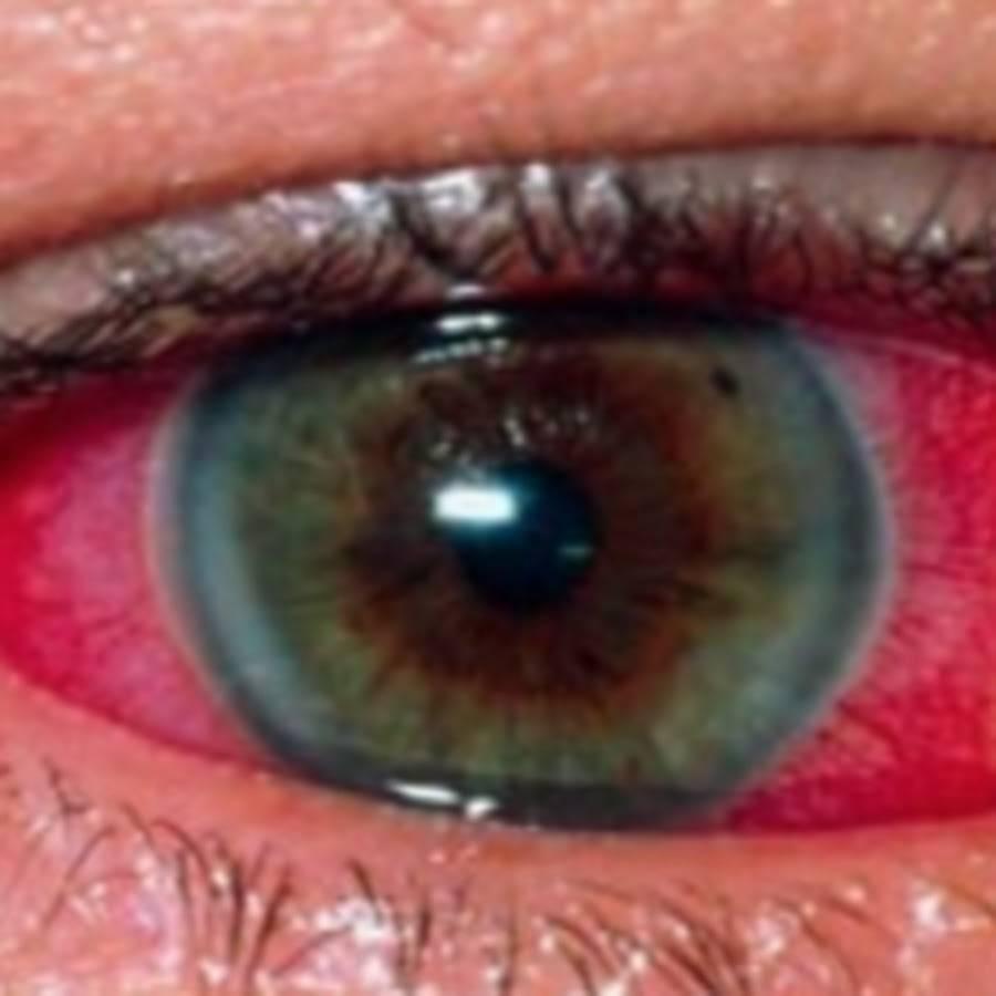 Кровоизлияние в глаз: причины и лечение, что делать при кровотечении