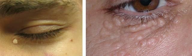 Жировики на веках глаз: как избавиться, способы удаления, причины появления (липома)