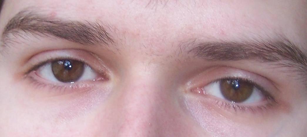 Стеклянные глаза у человека. стеклянные глаза: патология или состояние души почему бывают стеклянные глаза
