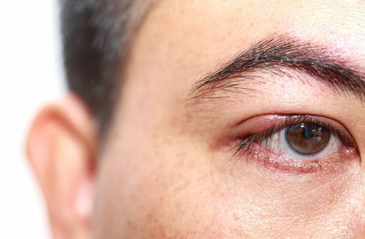 Продуло глаз симптомы и лечение у ребенка