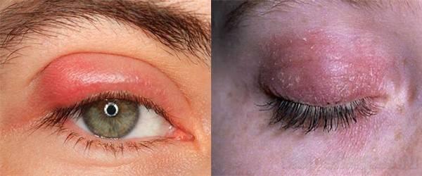 Аллергия на веках глаз: причины и лечение oculistic.ru аллергия на веках глаз: причины и лечение